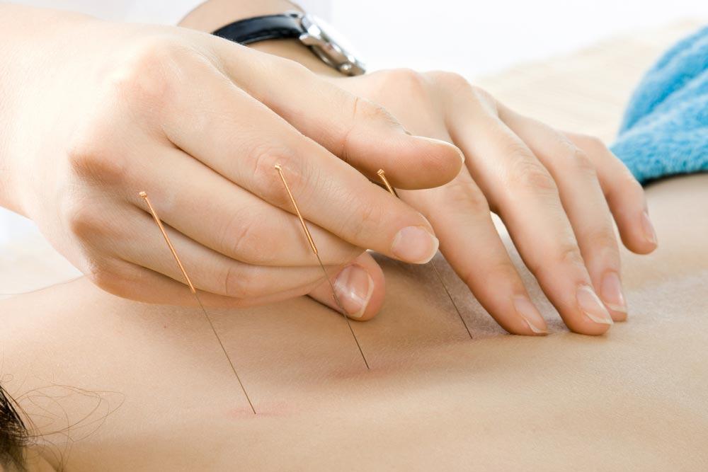 Может ли иглоукалывание помочь в лечении эректильной дисфункции?