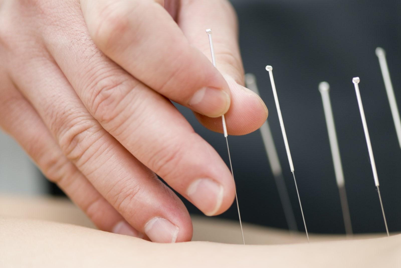 Акупунктура для лечения простатита